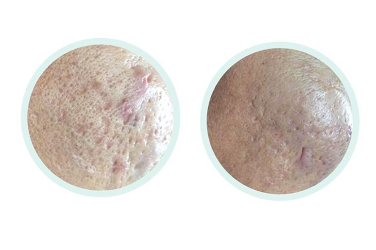 Sẹo rỗ hay còn gọi sẹo lõm là tình trạng tổn thương sâu của cấu trúc da