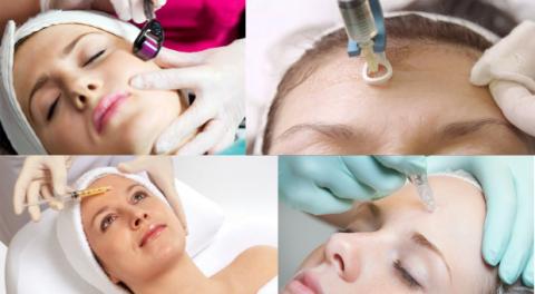 Ứng dụng của lăn kim PRP trong điều trị sẹo rỗ