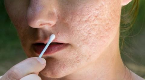 Lời khuyên của bác sĩ để điều trị sẹo rỗ bằng công nghệ Laser Fractional CO2 kết hợp PRP hiệu quả nhất
