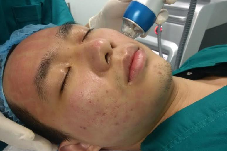 Máy lăn kim thẩm mỹ  RF chuyên trị sẹo rỗ