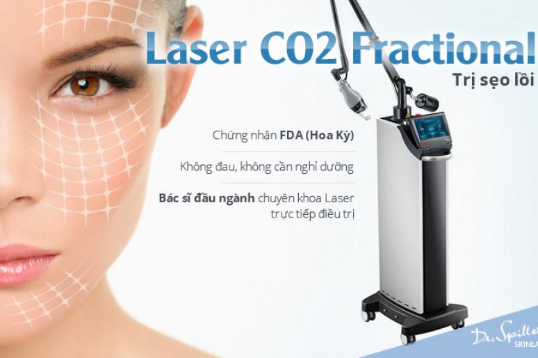 Cách tốt nhất trị sẹo lõm : máy Laser Fractional CO2