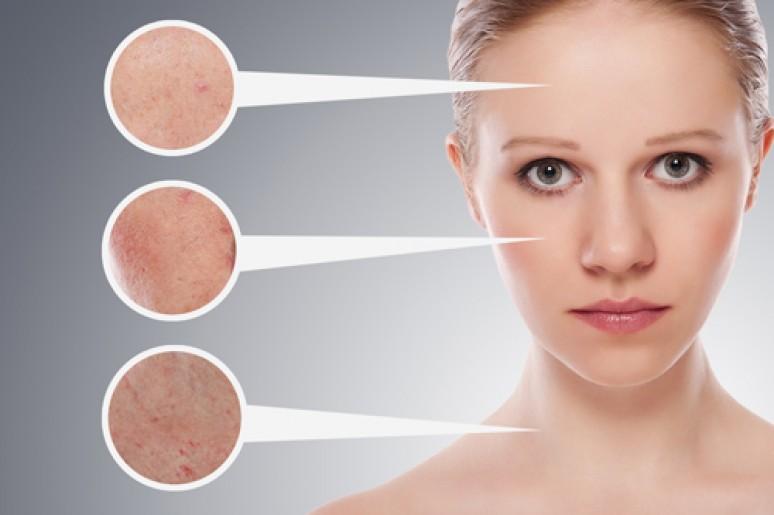 Lăn kim không những điều trị sẹo rỗ mà còn giúp làn da trở nên săn chắc hơn