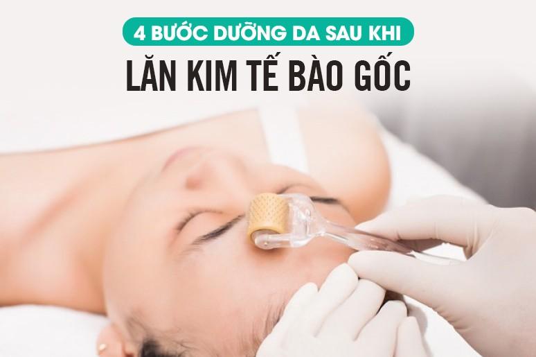 4 bước chăm sóc da sau khi lăn kim tế bào gốc