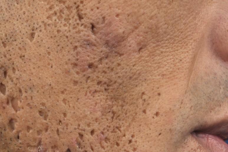 Sẹo lõm chân đá nhọn - Ice Pick Scar