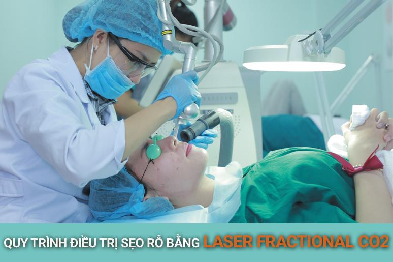 Quy trình trị sẹo rỗ bằng công nghệ Laser Fractional CO2