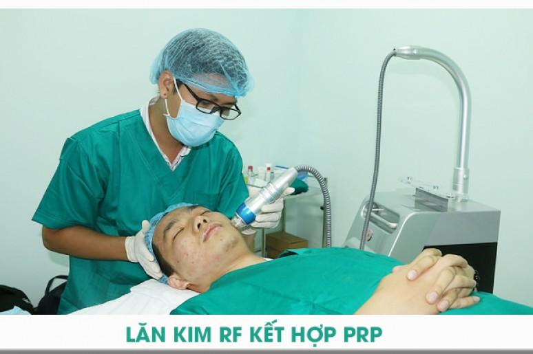 Ứng dụng của công nghệ lăn kim RF kết hợp PRP tại phòng khám chuyên trị sẹo rỗ Doctor Scar
