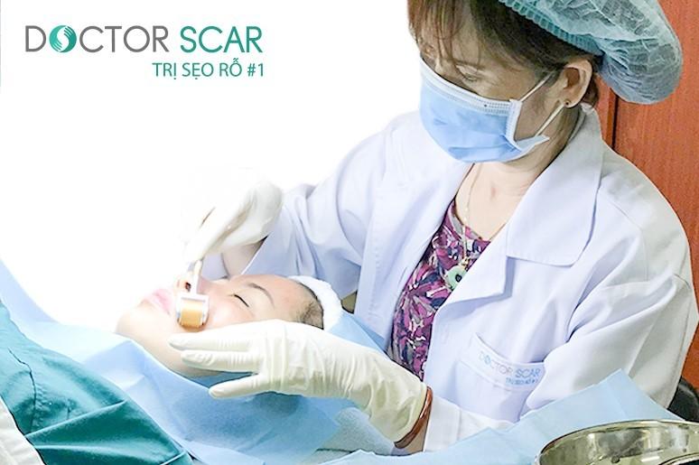 Điều trị sẹo rỗ bằng công nghệ lăn kim tế bào gốc