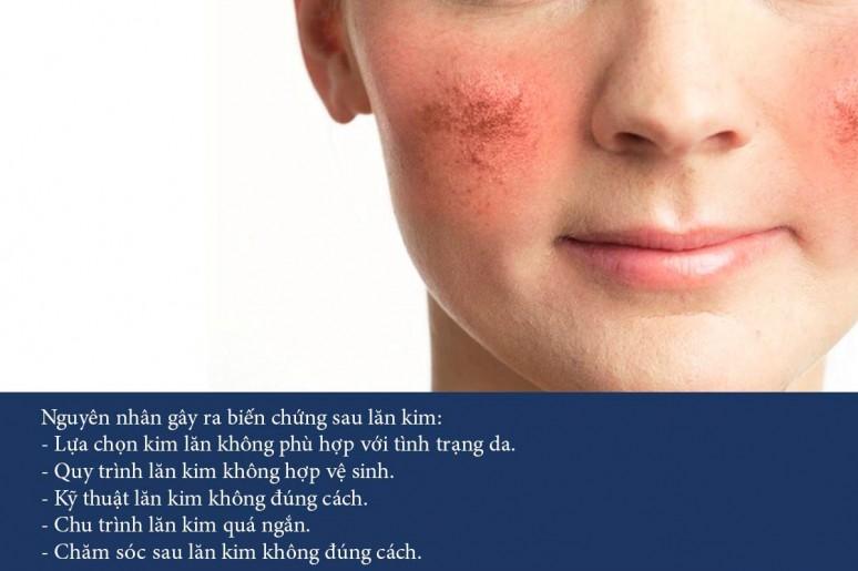 Sự thật làm đẹp bằng phương pháp lăn kim tái tạo da