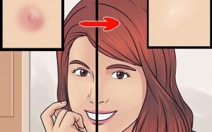 Lời khuyên cực kỳ hữu ích của bác sĩ da liễu dành cho bạn để phòng tránh sẹo rỗ